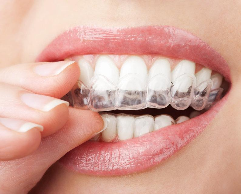 Close up of woman using Invisalign | Dentist Mount waverley VIC